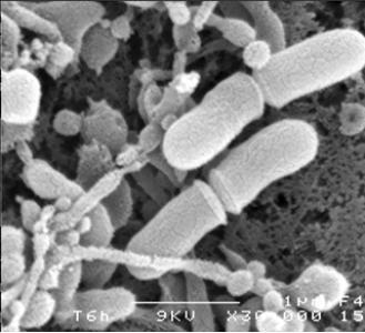 Propionibacteria